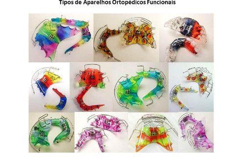 Resultado de imagem para cor de aparelhos ortodonticos e ortopedicos