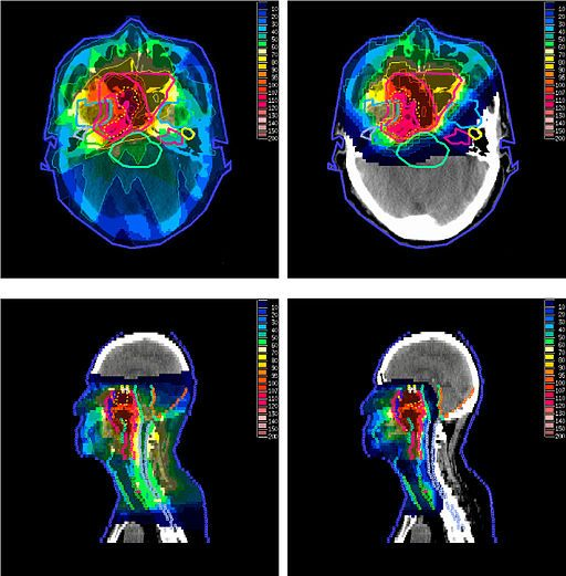 Proton therapy is fast becoming one of the most exciting treatment modalities in radiotherapy.  It's generally thought to improve cancer treatment outcomes and reducing side effects for patients. Although proton therapy has been around for a while, it is only just becoming economical to build treatment centers for these expensive machines.  So...