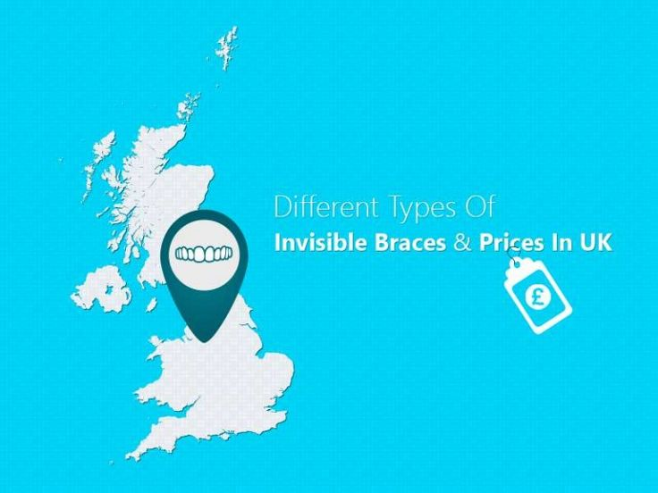 Invisible #braces are barely visible or unnoticeable than other metal braces. There are different types of invisible braces like #Invisalign, Lingual and ceramic braces. We are discussing about the benefits of this different invisible braces.