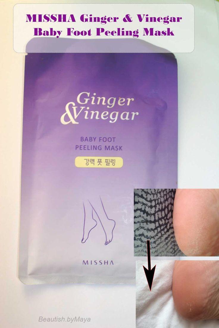how to get rid of peeling skin on feet fast