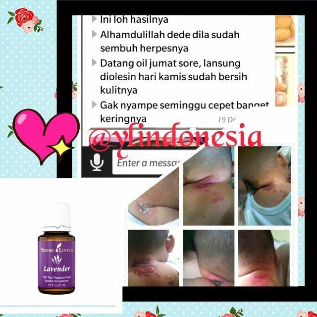 Testi_lavender#lavenderessentialoil#youngliving #ylindonesia #lavendertestimony