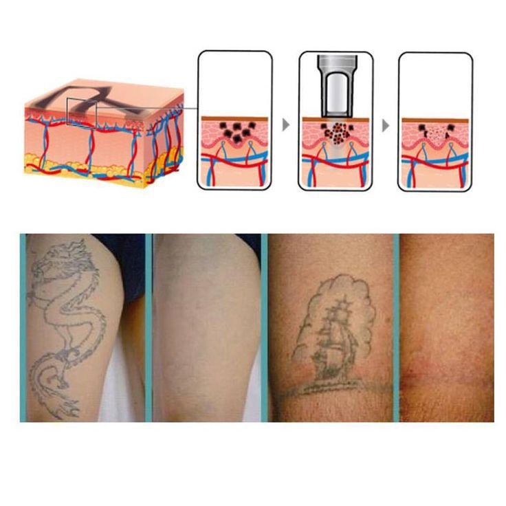 Laser Q-Switched ND:Yag : Rimozione dei tatuaggi e macchie della pelle. rimuove i pigmenti colorati del tatuaggio, sottopelle a livello del derma, con altissima potenza ma con impulsi molto brevi di laser, che passando attraverso la pelle elimina le particelle del tatuaggio. 1064nm per lesioni a pigmento scuro / 532nm per lesioni pigmento chiaroLunghezza d'onda 1064nm: si trattano i pigmenti scuri del tatuaggio, come il nero e blu