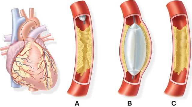Balloon Angioplasty of coronary artery procedure came into existence in the late seventies. It is a non-surgical procedure, which helps in relieving the narrowing & obstruction of the arteries over the muscles of the heart. This helps in giving you more blood and oxygen that is delivered over the heart muscles. The procedure is now referred to certain percutaneous coronary intervention.