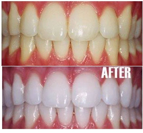1000 images about perlacoco oil pulling reinvented on pinterest best teeth whitening. Black Bedroom Furniture Sets. Home Design Ideas