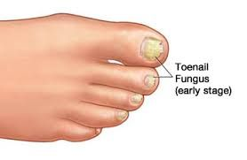 That is why when you include identified a teeth yellowing of this fingernails or toenails, you must fulfill a new podiatric physician and find the recommendation