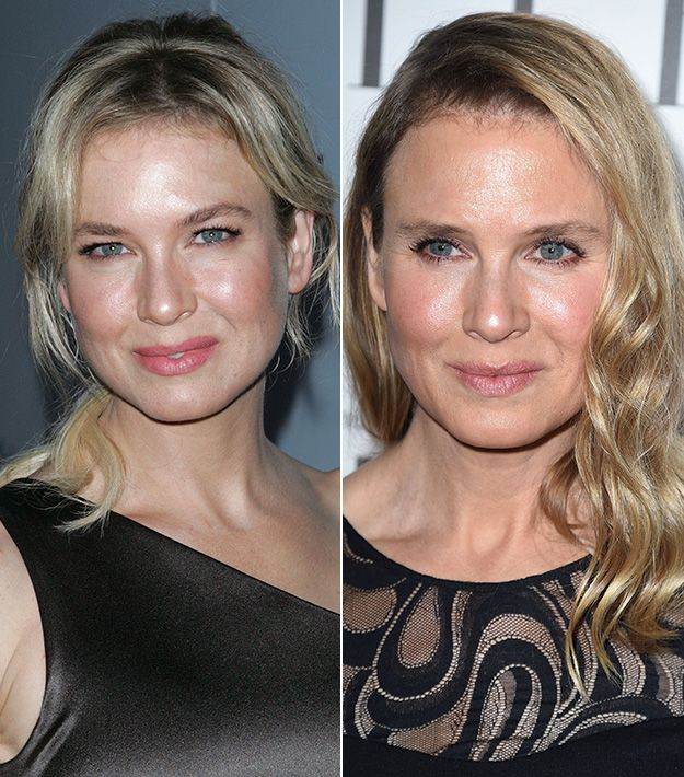 Renee Zellweger Did She Get Plastic Surgery The Truth