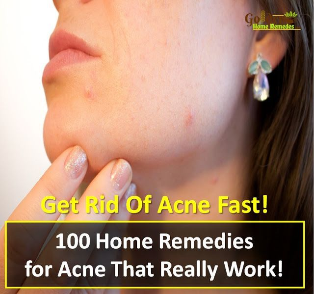 100 Home Remedies for Acne That Work!  How To Get Rid Of Acne, How To Get Rid Of Acne Fast, Acne Treatment, How To Cure Acne, Acne Home Remedies, How To Cure Acne Fast, Acne Remedies, Home Remedies For Acne Treatment, Easy Acne Treatment, Acne Treatment, How To Treat Acne Fast