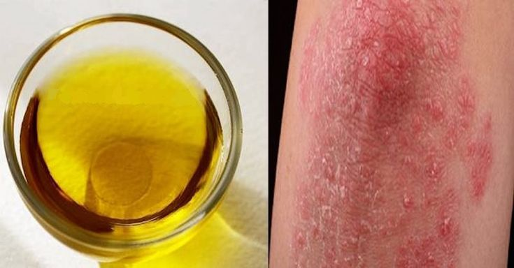 Tento vysoce léčivý olej z tropického stromu rostoucího v Austrálii se řadí mezi nejoblíbenější přírodní léky k mnoha kožním onemocněním.