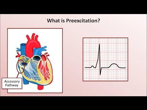 17 Best images about Cardiology & EKG on Pinterest | Medical ...
