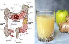 Comment les pommes, le gingembre et le citron peuvent expulser des kilos de toxines de votre corps  http://www.elishean-aufeminin.com