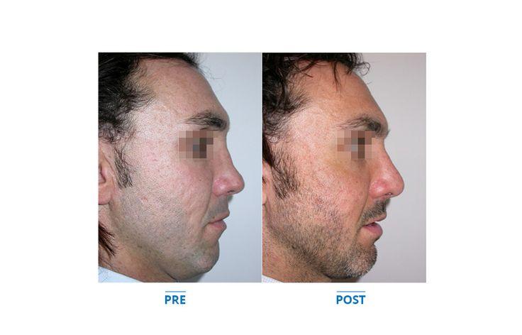 Chirurgia secondaria, naso insellato - Plastic surgery, nose - rhinoplasty