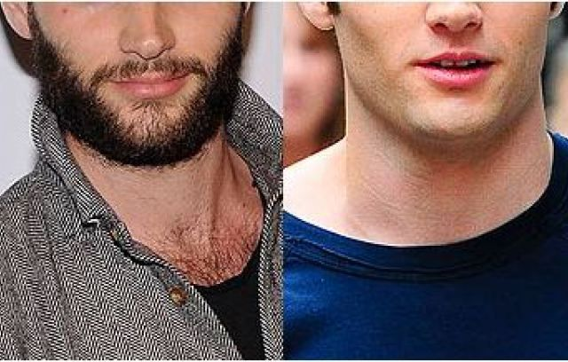 """While taking testosterone shots Jess grew a beard that was """"blond streaked with red and brown and white"""""""