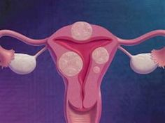 cystic ovarian disease