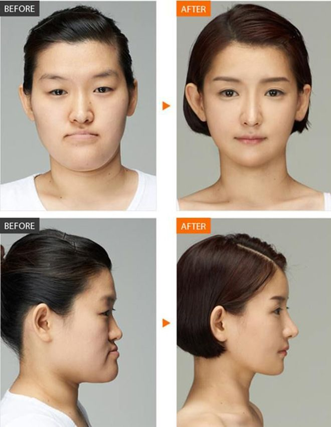 Korean Face Plastic Surgery Chin Lips And Nose Before And After Korean Plastic Surgery Face Plastic Surgery Plastic Surgery