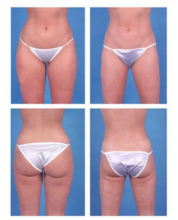Man i need this! amd a nose job then ill be good. Liposuction Before and After Photos: Inner and Outer Thighs