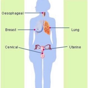 6 DIFFERENT TYPES OF CANCERS IN WOMEN