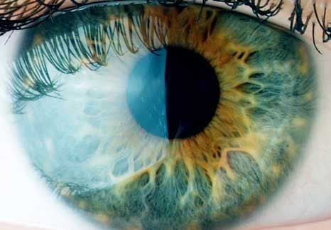 Vision Health | When to See Your Eye Doctor