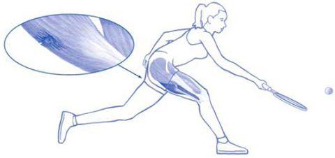 Hamstring blessure is de meest voorkomende blessure van het bovenbeen bij tennissers. Ontdek hoe snel en effectief te herstellen van een hamstring blessure.