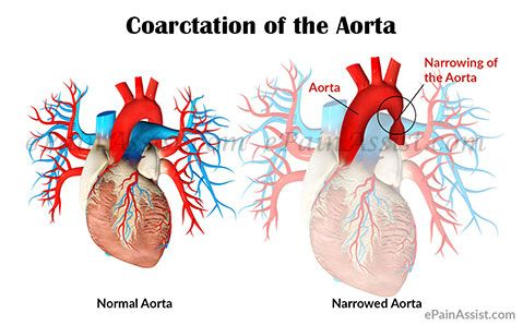 Congenital Heart Defects  Facts about Coarctation of the