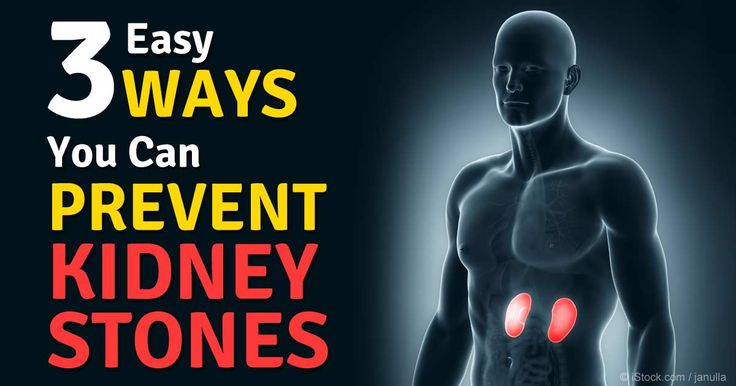 Simply keeping your urine light yellow will go a long way toward preventing kidney stones -- drinking plenty of water is essential. http://articles.mercola.com/sites/articles/archive/2014/11/19/kidney-stone-prevention.aspx