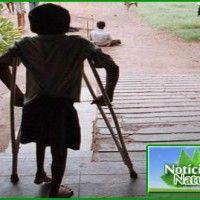 Vacina contra a Poliomelite Está Causando Aumento de Casos de Paralisia Infantil no Mundo Todo