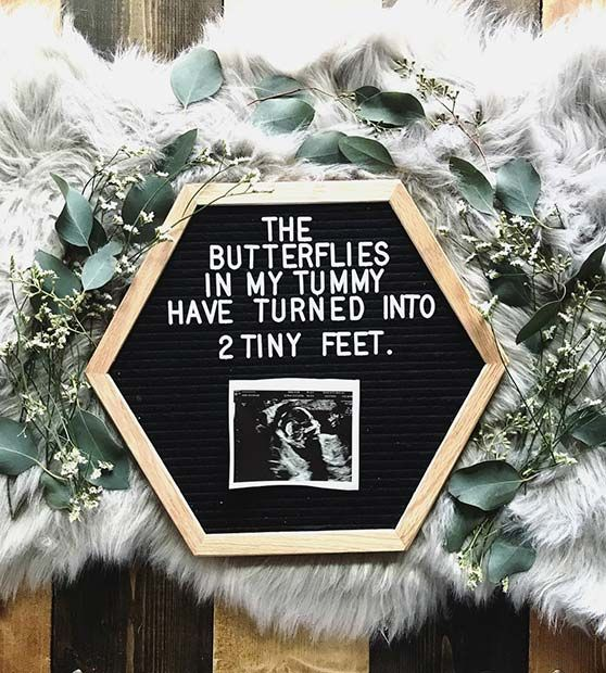 21 Christmas Pregnancy Announcement Ideas – StayGlam Mommy