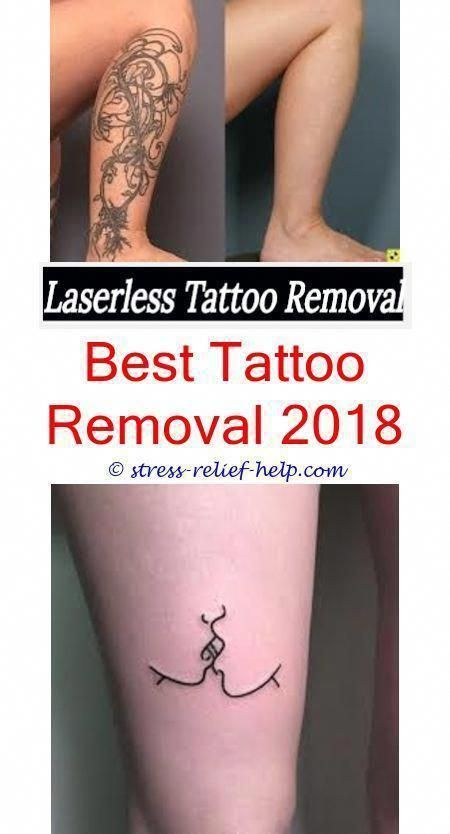 Tattoo Removal Cost How To Stop Itching After Laser Tattoo Removal