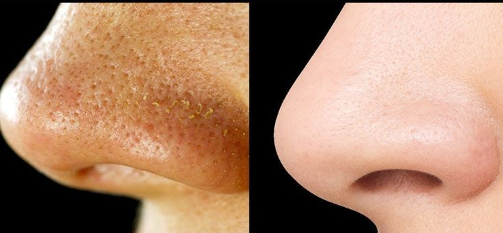 Blackheads, or comedones, are small black dots that are predominantly on the forehead, nose and chin