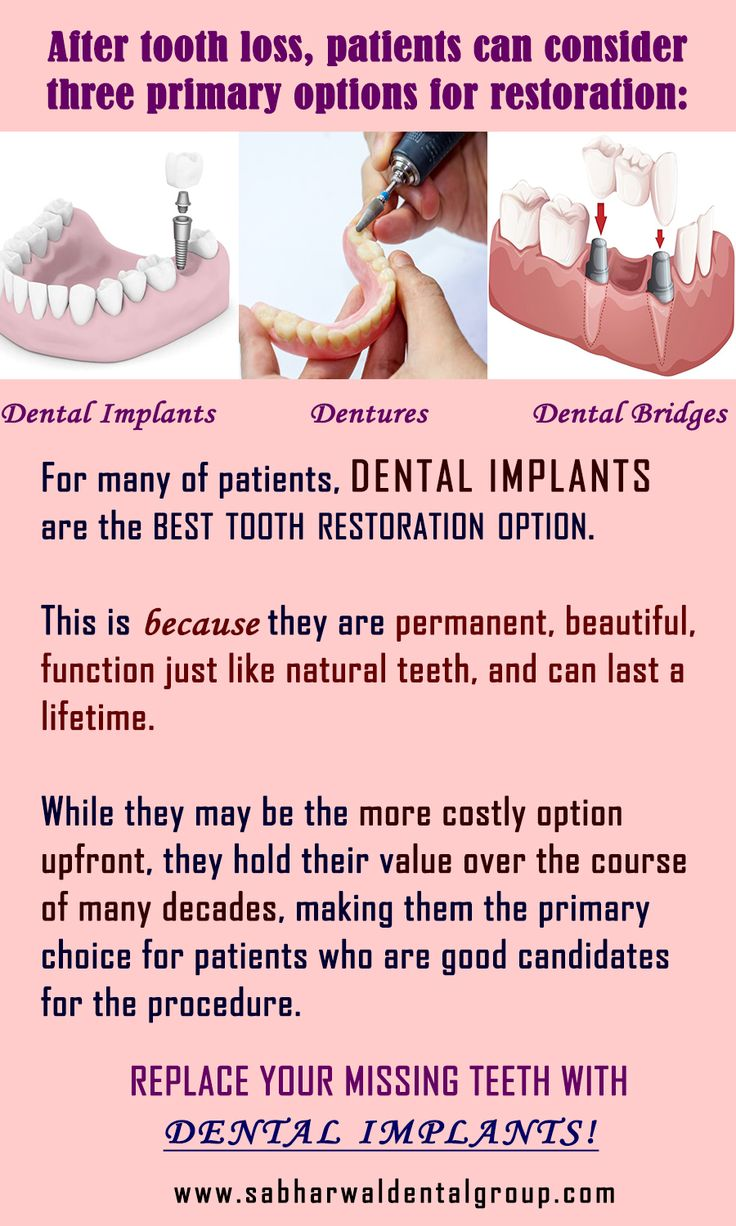 Dental Implant Quotes Best 25 Missing Teeth Ideas On Pinterest  Dental Implant