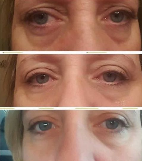 Face Gymnastics  Methods For Age-Reversal And Winkle Eradication