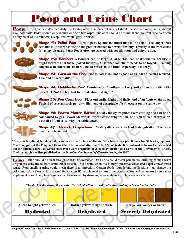 The 25+ best Stool color chart ideas on Pinterest Rustic nursery - sample urine color chart