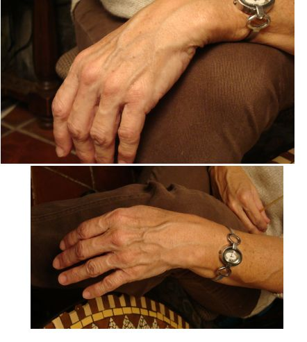 Prominent veins of EDS -hypermobility type. i'm 46 and have hands worse than these for the past 20 years. on top of geriatric hands, i have livedo reticularis, which makes for some ugly as sin 'winter hands', that only like to move when they're warm and rested.
