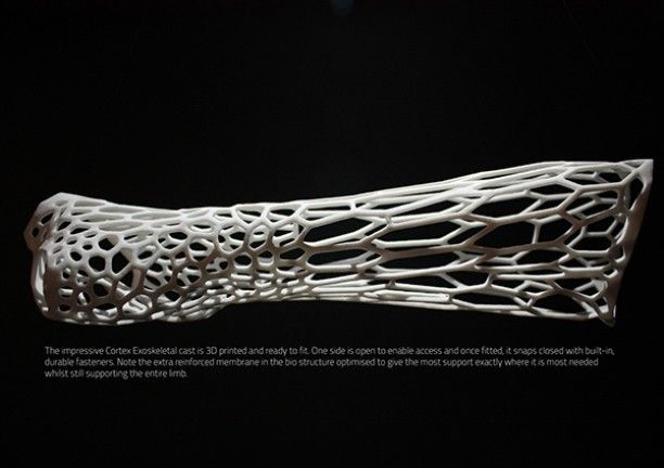 instead of a cast!  #create #creative #invest #idea #3dmarket #solidworks #modeling #3dprint #3dprinting #prosthetics #cad #technology #tech #design#industrialdesign #invest #volenteer #project #electronics #technology #tech #electronic #device #techy #photooftheday #computers #helpingothers #helpinghand by 3d_market
