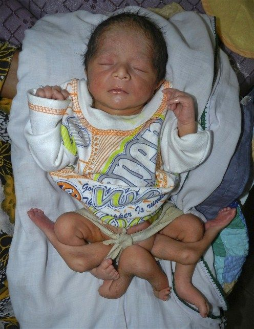 A newly-born child, who has six legs, rests on his grandmother's lap at his family home in Sukkur in Pakistan's Sindh province. The child has a birth defect known as Polymelia, in which the affected individual is born with extra limbs that are usually small or deformed.