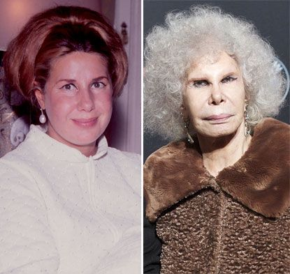 Duchess of Alba Plastic Surgery Before and After Photo, Picture - New