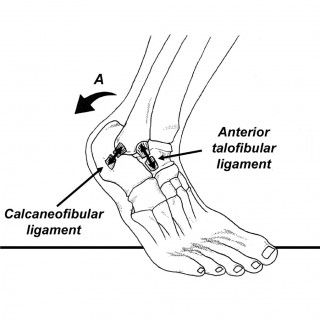 Here's how to treat and rehab a sprained ankle—and make sure it doesn't happen again.