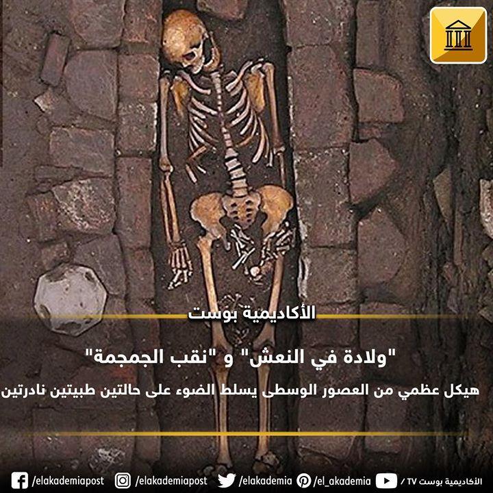 ولادة في النعش و نقب الجمجمة هيكل عظمي من العصور الوسطى يسلط الضوء على حالتين طبيتين نادرتين وفقا لتقرير تم نشره في World Neu Movie Posters Movies Poster