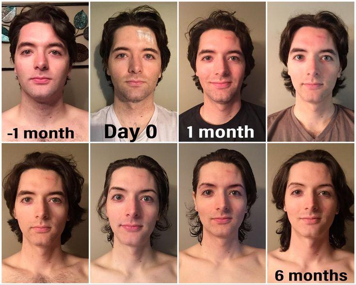 MtF 6 months HRT!!! 26yo in about 1 week! : transtimelines