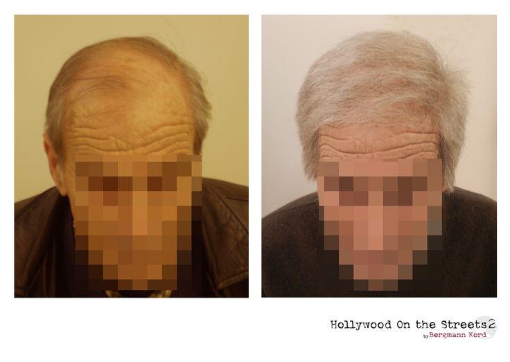 www.hos2.gr Φωτογραφίες πριν και μετά. Τεχνική αποκατάστασης μαλλιών hos-2.