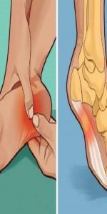 DOES YOUR HEEL HURT IN THE MORNING OR WHENEVER YOU STAND UP? HERE'S WHAT YOU NEED TO KNOW