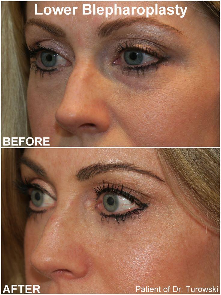 http://drturowski.com/eyelid-lift-surgery-blepharoplasty-chicago.html