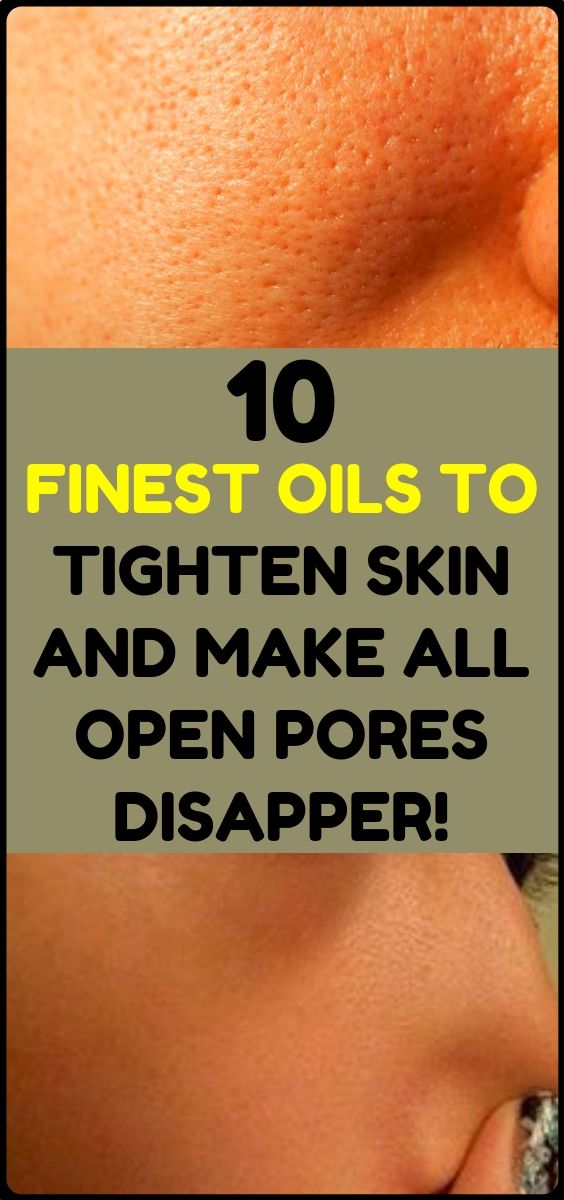 The Top 10 Essential Oils For Skin Care And All Op…