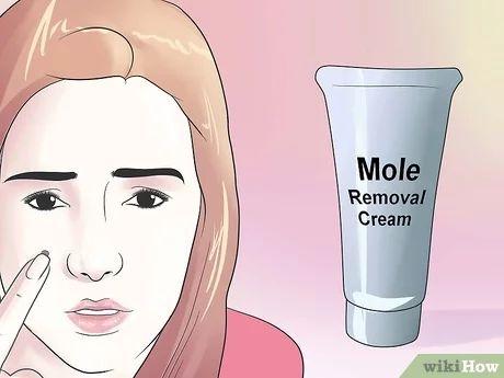 Bildtitel Remove a Mole at Home Step 13
