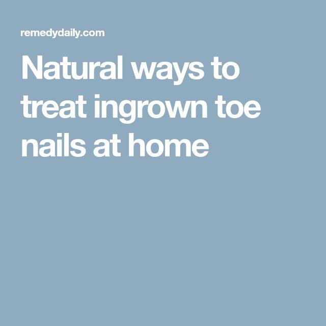 Natural ways to treat ingrown toe nails at home