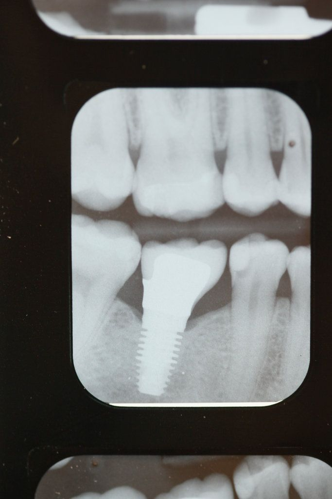 tooth implant cost london ontario