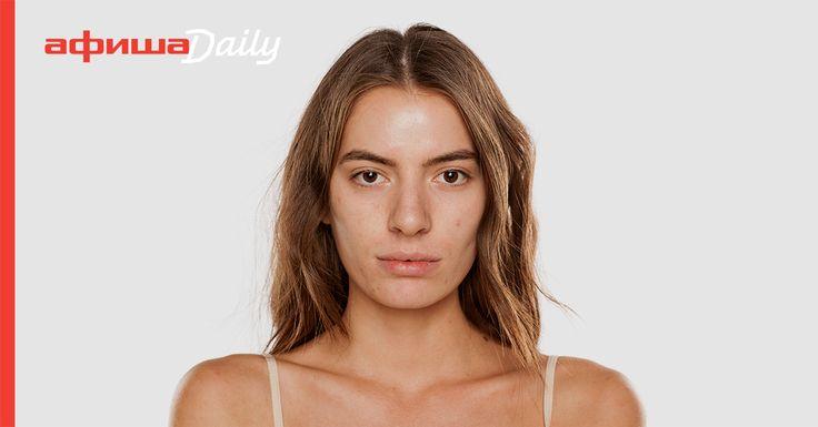 Автор блога Don't touch my face Адэль Мифтахова — о малознакомых обывателям компонентах косметики, которые быстрее и эффективнее других успокаивают и заживляют кожу.