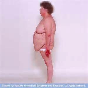 La causa más común del síndrome de Cushing es la enfermedad de Cushing, que ocurre cuando la hipófisis produce demasiada hormona ACTH, la cual estimula las glándulas suprarrenales para producir cortisol. La enfermedad de Cushing afecta a las mujeres con más frecuencia que a los hombres.