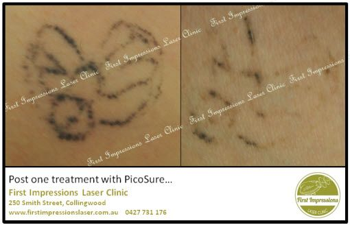 Laser tattoo removal on our PicoSure laser will have this little bug gone within two treatments - this is after only one! #tattoo, #lasertattooremoval, #tattooregret, #tattooremorse, #skin, #beauty, #tattooremovalmelbourne