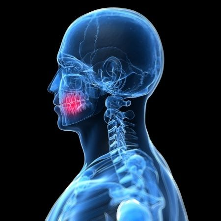 Casos frecuentes en los que se producen las urgencias dentales en nuestra clinica dental en Madrid