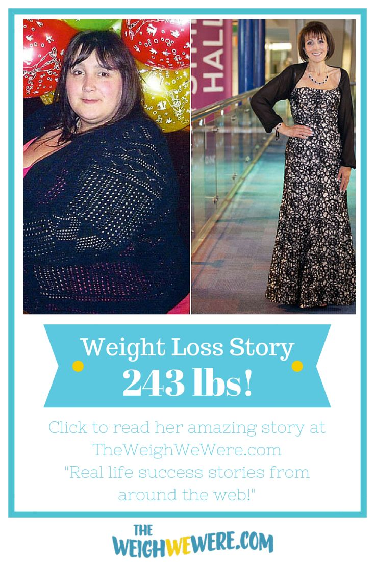 """On Her Weigh"": Kim lost 243 pounds and now no longer needs to walk with a cane because of her weight! Read her story..."